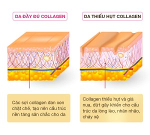 6-su-that-ve-collagen-6-su0tha0-ve-collagen-1